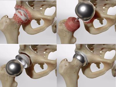 Протезирование тазобедренного сустава: современный подход в Испании