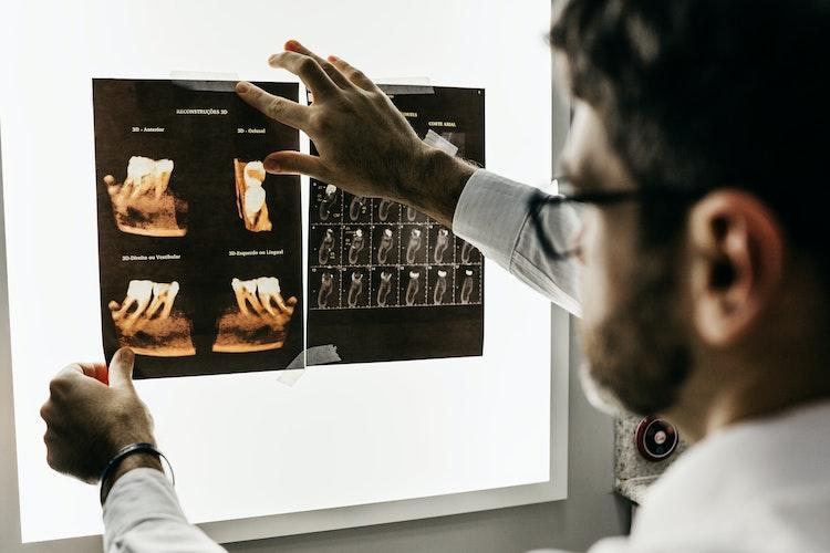 implantologija v ispanii: tendencii i razrabotki