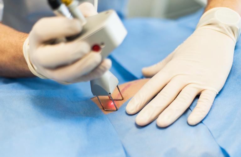 Коррекция шрамов и рубцов в Испании