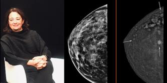В госпитале Виналопо внедрена инновационная техника маммографии