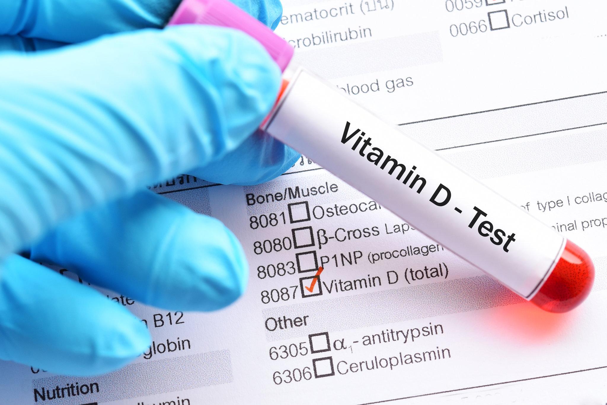 Vitamin D and coronavirus-3