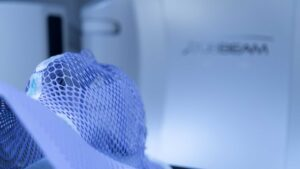 В госпитале Quirónsalud в Торревьехе внедрена новая технология радиотерапии